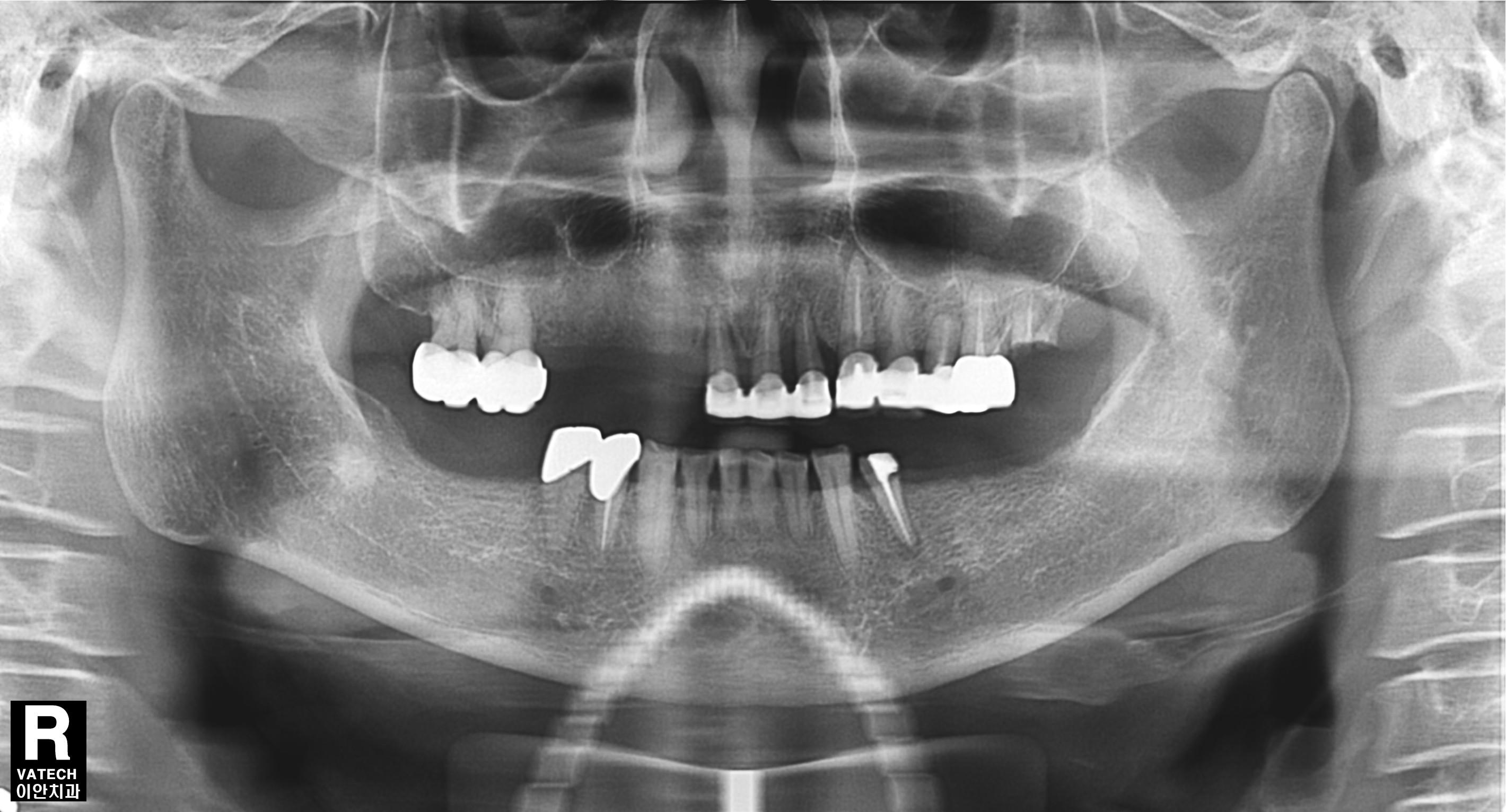 implants dentist